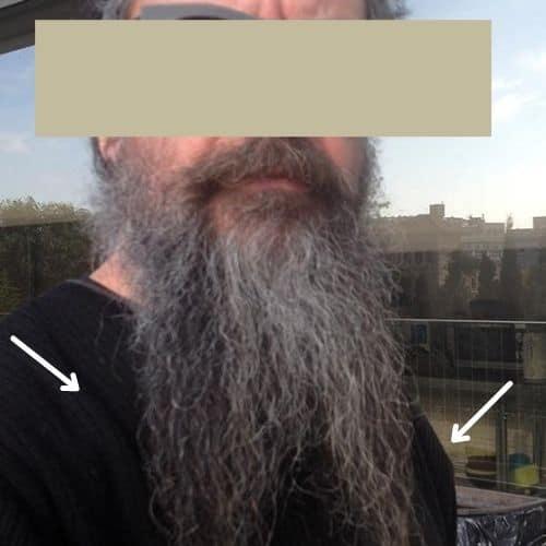 beard split