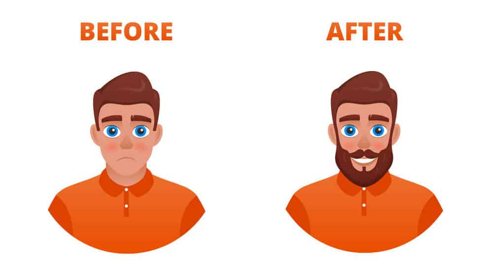minoxidil beard before after